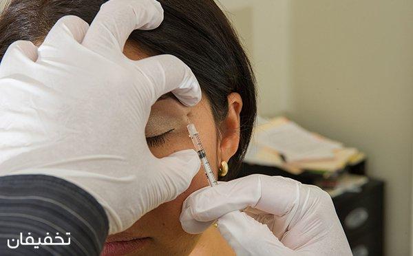 ۶۵% تخفیف بوتاکس کل صورت در مطب دکتر تازیک